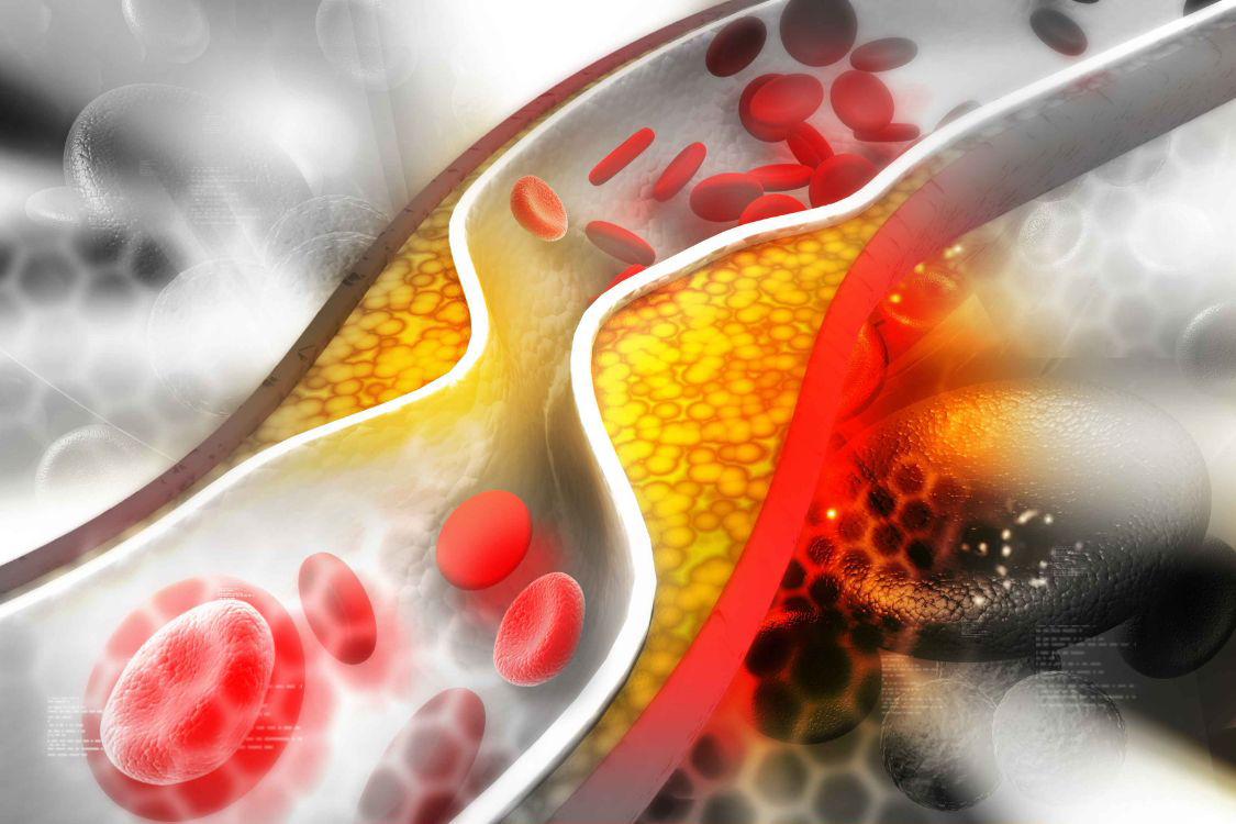 这3个时间段喝水,或可有效避免血栓的发生,呵护身体健康